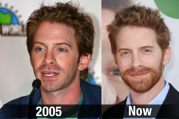 Seth Green Never Aging