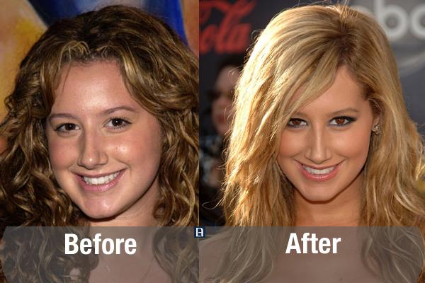 Ashley Tisdale Plastic Surgery Transformation