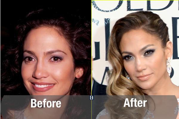 Jennifer Lopez Plastic Surgery Transformation