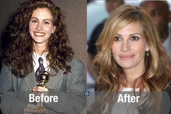Julia Roberts Plastic Surgery Transformation