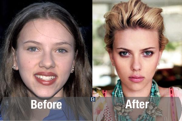 Scarlett Johansson Plastic Surgery Transformation