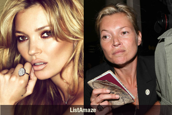 10 beautiful celebrities before amp after drugs shocking