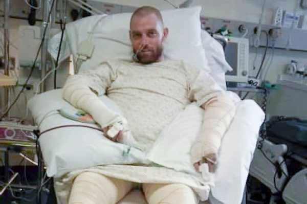 Rob Small - Survives Blaze that Lit him like Human Torch
