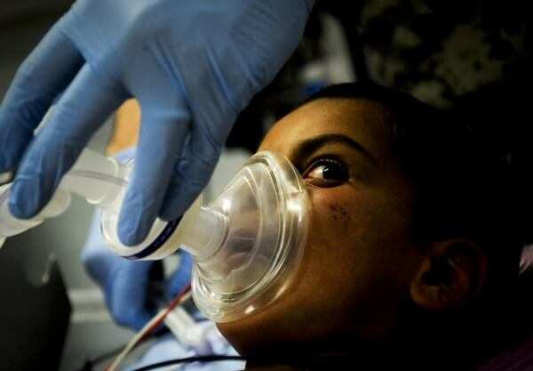 laughing gas as anesthesia