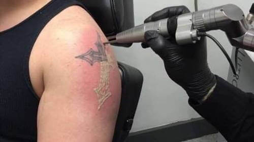 Laser Tattoo Removal is Not Removing Tattoos