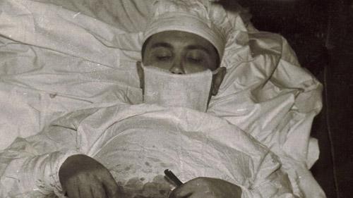 Russian doctor had to remove his own appendix in Antarctica